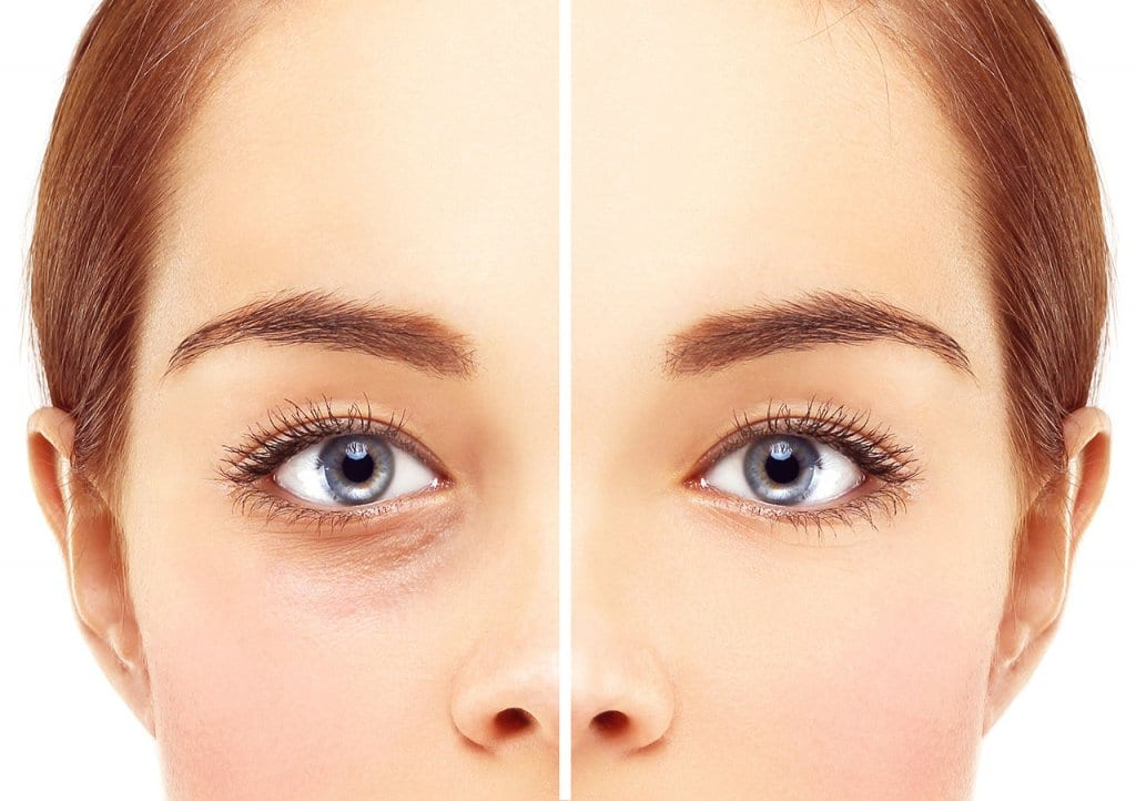 Blepharoplasty - Eyelid Surgery