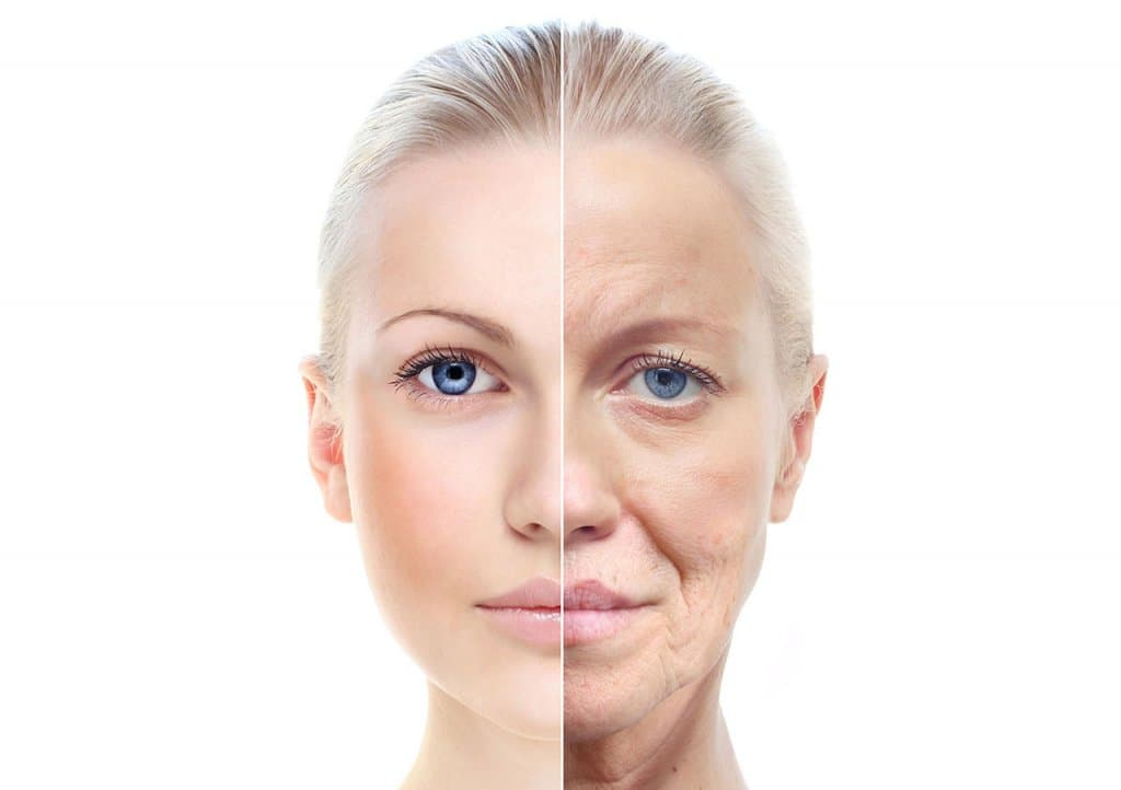 Facelift – Facial Cosmetic Surgery in Turkey
