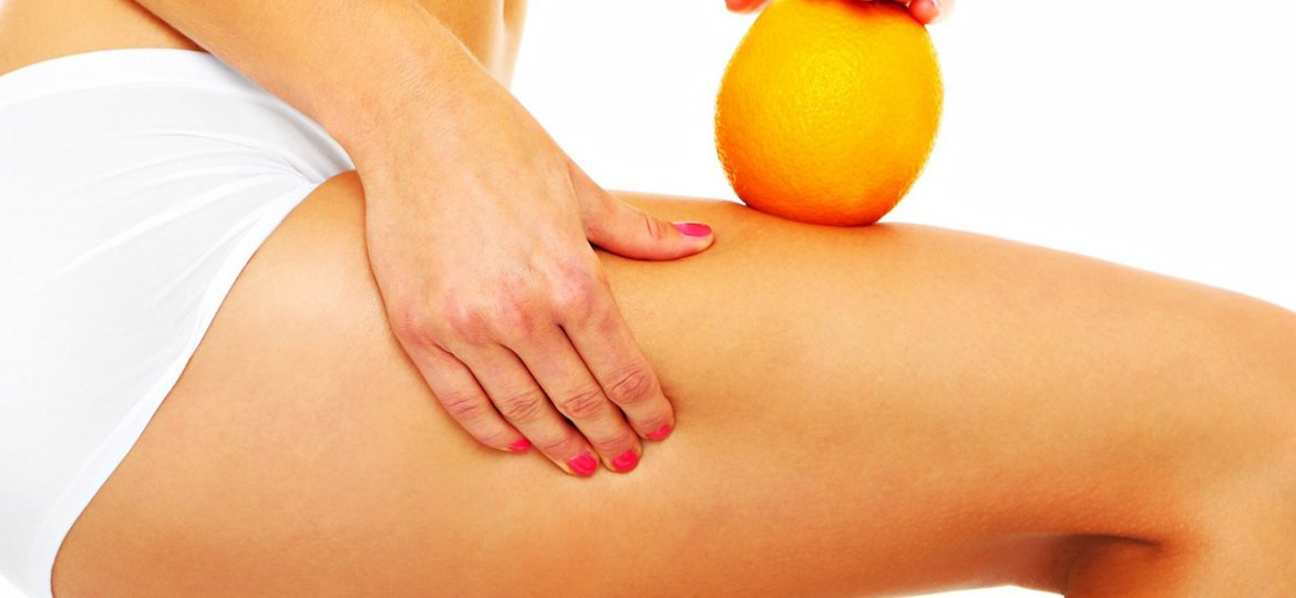 Cellulite Removal Surgery