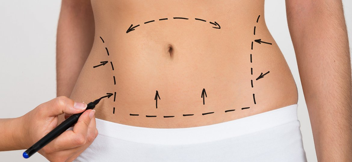 Tummy Tuck Surgery in Turkey - Abdominoplasty