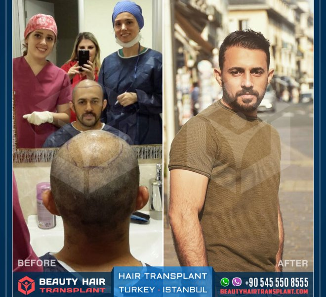 Istanbul_Hair_transplant-before-after