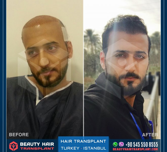 Istanbul_Hair_transplant-before-and-after