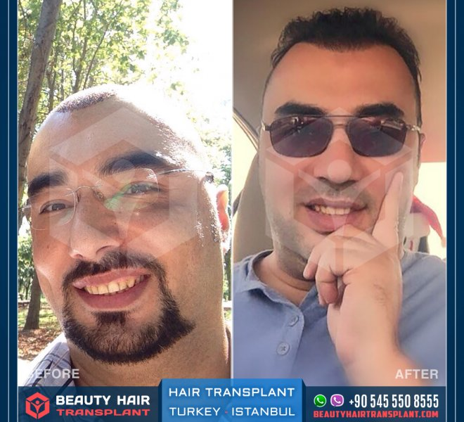 Istanbul_Turkey_Hair_transplant-before-after