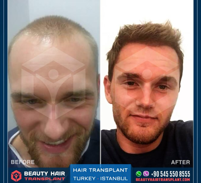 Turkey_Istanbul_Hair_transplant-before-after