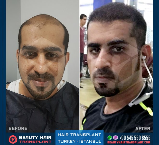 Turkey Istanbul Hair transplant before and after