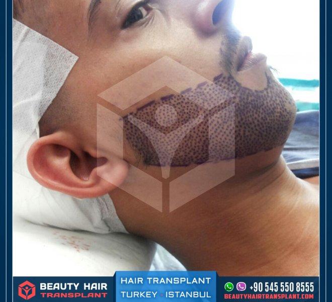 beard-implant-line