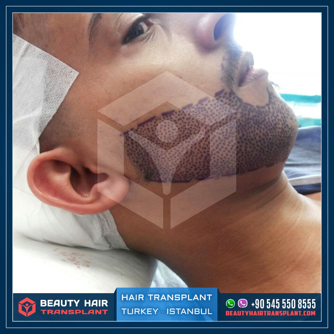 Beard Transplant in Turkey - Beauty Clinic
