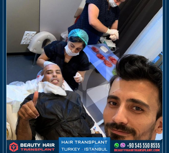 final-stage-hair-transplant-surgery