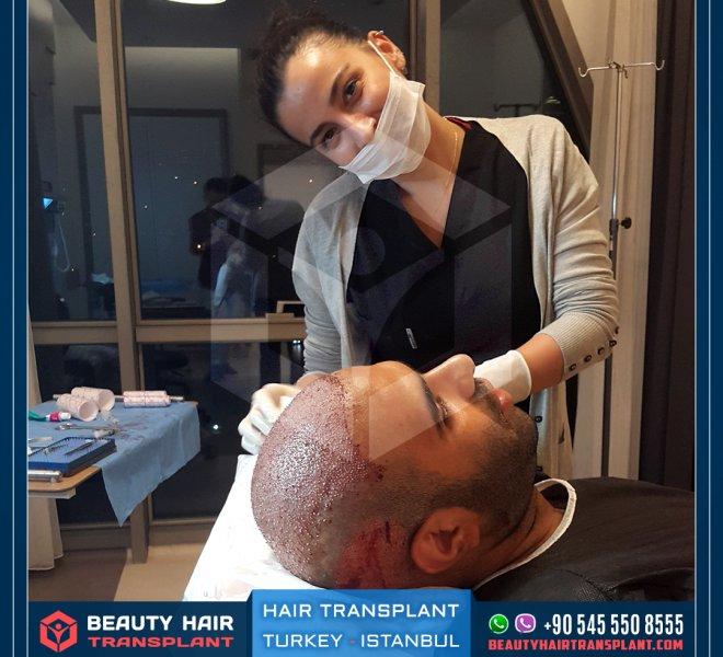 hair-transplant-procedure-istanbul