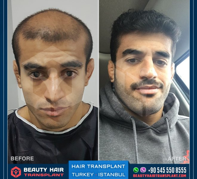 hair-transplant-turkey-istanbul-before-after