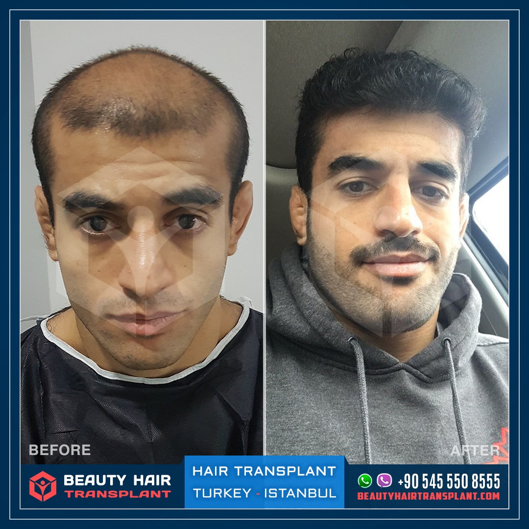 Hair Transplant in Turkey Before After | Hair ...