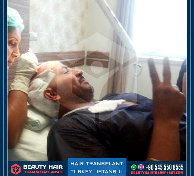 hair-transplant-using-percutan