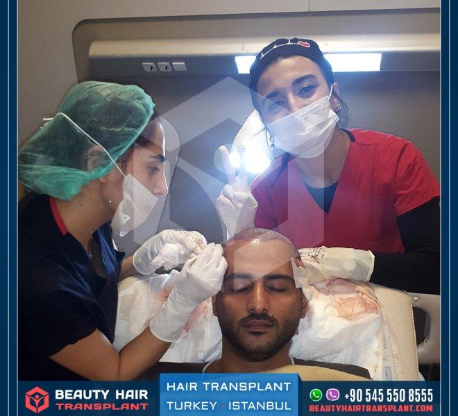 hair-transplantation-process