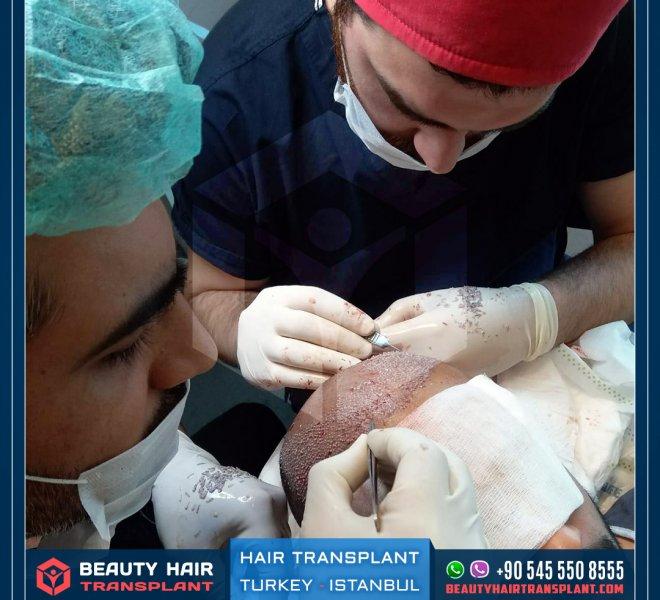 implanting-hair-follicle