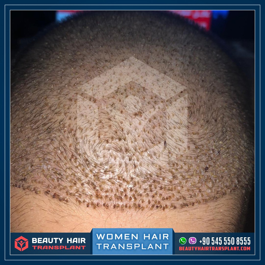 Women hair transplantation in Turkey