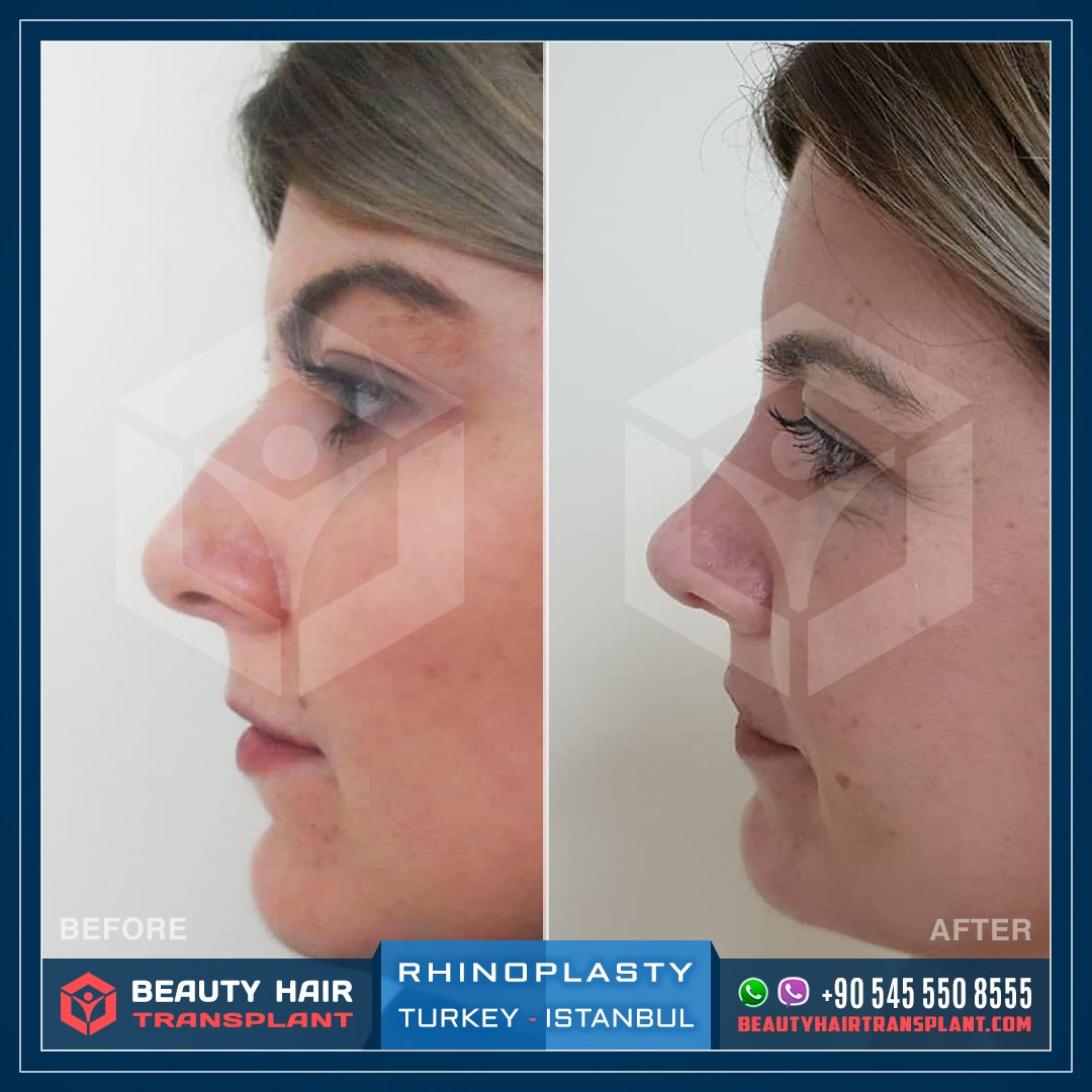 Rhinoplasty in Turkey Before After